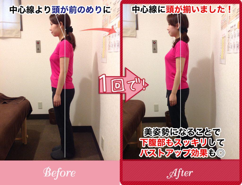 姿勢の悪さが改善し下腹部もスッキリ、バストアップもした女性