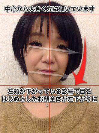 小顔整体の施術前(お顔全体が左下がりだった女性)