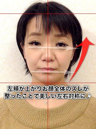 小顔整体の施術後(お顔全体が左下がりだった女性)