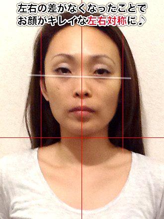 小顔整体の施術後(お顔全体が左に傾いている女性)