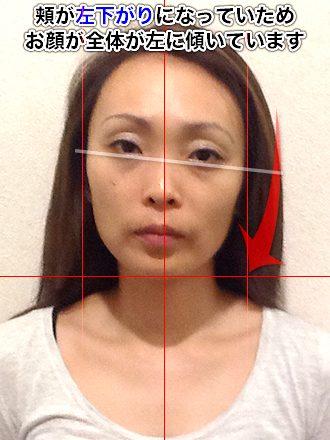 小顔整体の施術前(お顔全体が左に傾いている女性)